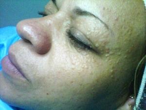 Liz Skincare Miami
